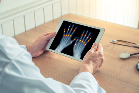 Doctor holding a digital tablet with x-ray of hands. Pain on the joints of the fingers. Stock Photo