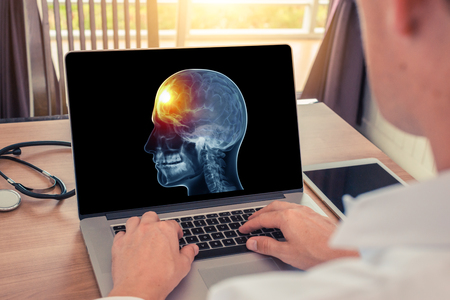 Doctor watching a laptop with x-ray of skull head and pain in the front of brain. Migraine headache or trauma concept.