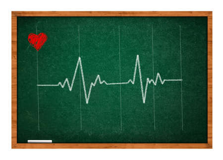 green chalkboard: Heart beat, EKG graph on a green chalkboard. Stock Photo