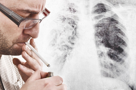 Nervous man is smoking cigarette. Smoking causes lung cancer and other diseases.