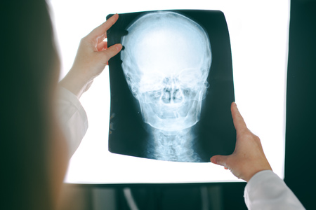 Female doctor looking at x-ray film of human head, woman in medical hospital interior examining xray screening image of skull