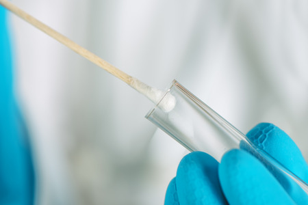 Cotton swab and DNA test tube, macro image of medical equipment in hands of healthcare professional