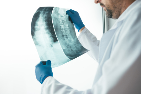 Doctor analyzing x-ray of the patients spine in a medical clinic. Healthcare professional examining imaging test for abnormalities in human backbone. Stock Photo