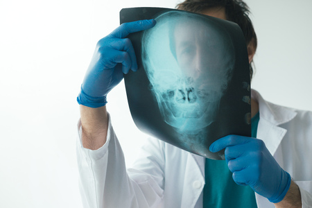 Doctor examining x-ray of the patient's skull in a medical clinic. Healthcare professional analyzing imaging test of human head.