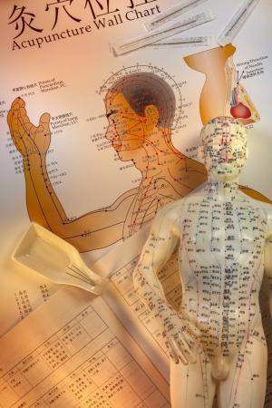 acupuntura china: La acupuntura es un sistema de medicina complementaria que debe pincharse la piel o tejidos con agujas, que se utiliza para aliviar el dolor y para tratar varias condiciones f�sicas, mentales y emocionales originadas en la antigua China, la acupuntura es ahora ampliamente pr�cticas Foto de archivo