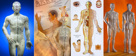 Acupuncture is a system of complementary medicine that involves pricking the skin or tissues with needles, used to alleviate pain and to treat various physical, mental, and emotional conditions. Originating in ancient China, acupuncture is now widely prac