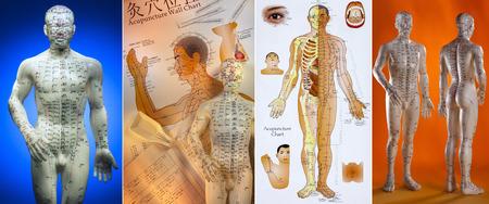 La acupuntura es un sistema de medicina complementaria que consiste en pinchar la piel o tejidos con agujas, que se utiliza para aliviar el dolor y para tratar varias condiciones físicas, mentales y emocionales. Con origen en la antigua China, la acupuntura es ahora ampliamente prác