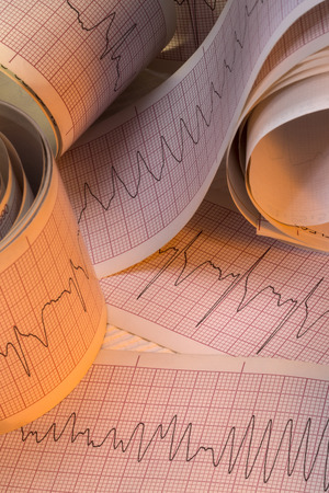Electrocardiograph traces of Cardiac Arrhythmia including Ventricular Fibrillation VF and Ventricular Tachycardia VT. Also known as cardiac dysrhythmia this a group of conditions in which the heartbeat is irregular too fast or too slow. VT and VF can lead