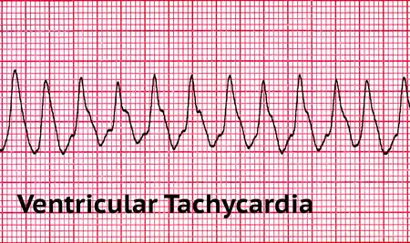 La tachycardie ventriculaire (VT) est une tachycardie, ou rythme cardiaque rapide, qui prend naissance dans l'un des ventricules du c?ur. Il s?agit d?une arythmie potentiellement fatale car elle peut entraîner une fibrillation ventriculaire, une asystolie et une mort subite.