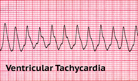 Ventricular tachycardia (VT) is a tachycardia, or fast heart rhythm, that originates in one of the ventricles of the heart. This is a potentially life-threatening arrhythmia because it may lead to ventricular fibrillation, asystole, and sudden death.