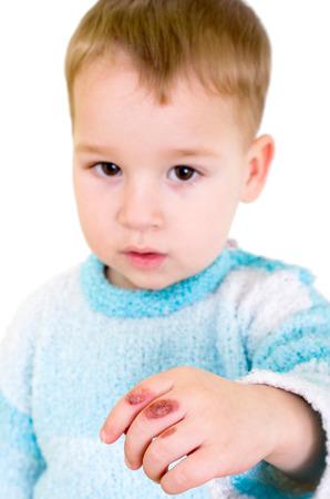 手に火傷を持つ少年 写真素材