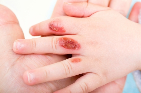 abused: a burn injury to a child Stock Photo