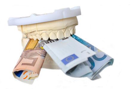 dentition: Modello in gesso della dentatura con il denaro