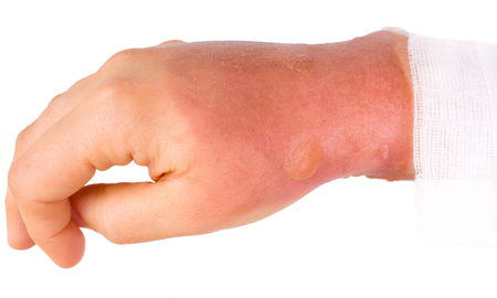Burns type two on the right hand