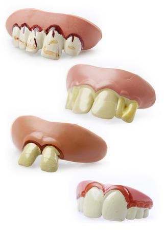 the novelty: Four novelty teeth on plain background