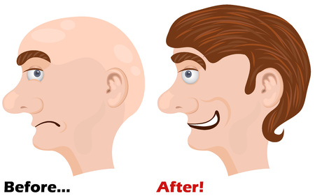 shaved head: Before and after using a miracle lotion illustration