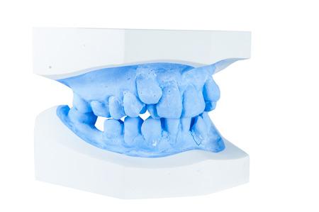 periodontics: teeth moldel on isolated white background Stock Photo