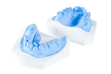 plaster mould: teeth moldel on isolated white background Stock Photo