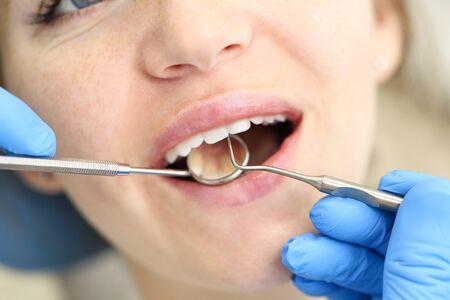 Close-up van het gezicht van een vrouw die een tandartscontrole ondergaat.