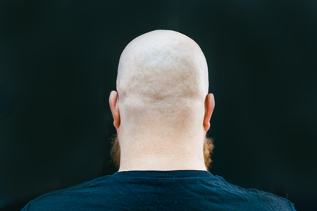 A close up of bald man's head from back side. Stock Photo
