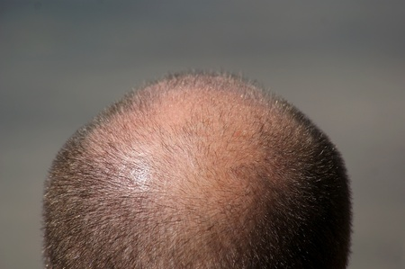 Close up view of a balding man Stock Photo