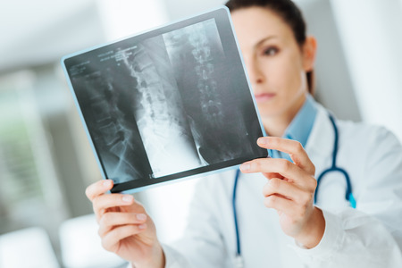 pathologist: Young professional female doctor examining patients x-ray of human spine during a visit