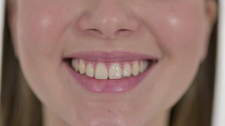 Lips and Teeth of Smiling Beautiful Young Woman