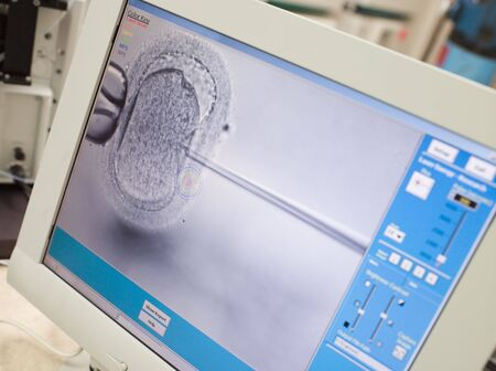 in vitro: Monitor showing intra cytoplasmic sperm injection (selective focus) Stock Photo