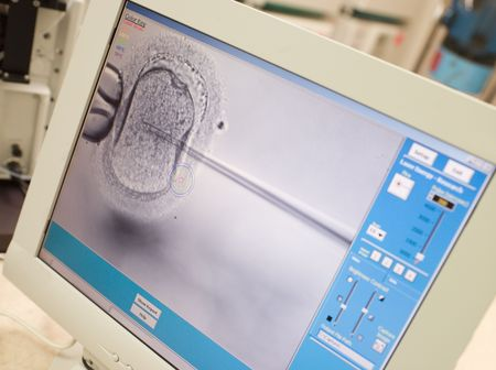 Monitor showing an intra cytoplasmic sperm injection (selective focus) photo