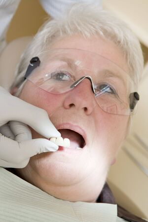 fitting in: Dentist in exam room fitting dentures on woman in chair
