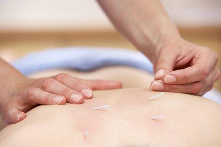 treating: Acupuncturist treating female client