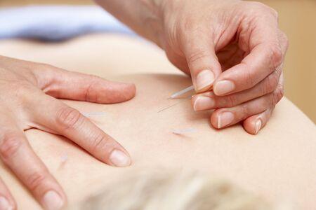 acupuncturist: Cliente femenina tratar de acupunturista  Foto de archivo