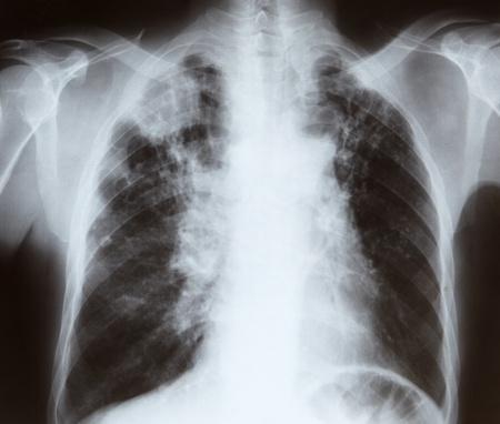 polmone: La radiografia del torace Archivio Fotografico