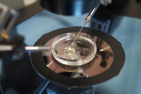 研究室の受精卵の体外受精の治療の 写真素材