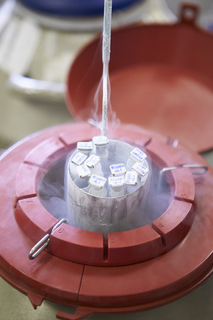精子バンクで冷凍保存