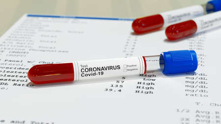 Negative or positive test result by using rapid test device for COVID-19, novel coronavirus 2019. 3d rendering