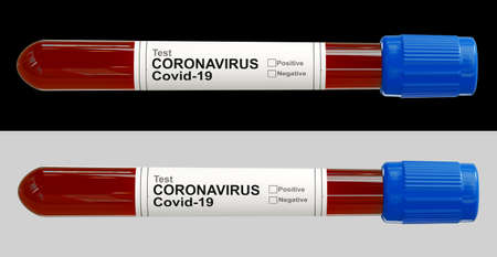 Top view of test tube with blood sample positive or negative for novel coronavirus infection. Covid-19 pandemic. 3d rendering