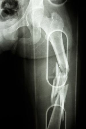 Film X-ray show comminute fracture shaft of femur Stock Photo - 25279754
