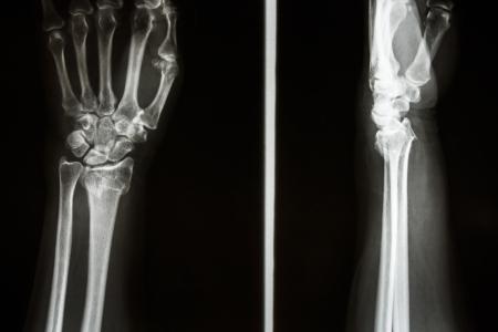 distal: Film raggi X mostrano frattura del radio distale (Colles 'frattura) (Wrist) Archivio Fotografico