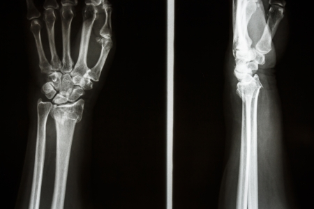 Film X-ray show fracture distal radius (Colles fracture) (Wrist)
