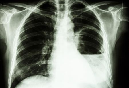 abscess: film X-ray show left lung abscess from Burkholderia pseudomallei infection  Mellioidosis