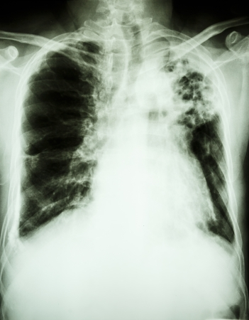 infiltration: Film X-ray show patchy infiltrate at left upper lung from Mycobacterium tuberculosis infection  Pulmonary tuberculosis  Stock Photo