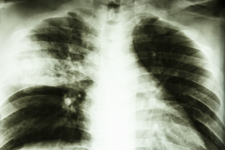 Film X-ray show patchy infiltrate at right middle lung  Lobar pneumonia from Mycobacterium tuberculosis infection  Pulmonary tuberculosis  Stock Photo - 25407893
