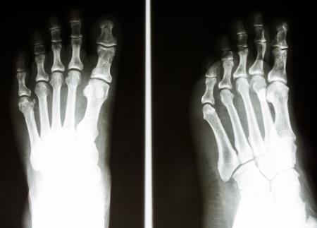 film X-ray show normal bone of human Stock Photo - 25409667