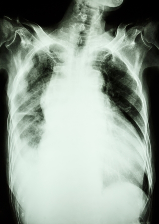 Film X-ray show infiltrate and effusion at right lung from Mycobacterium tuberculosis infection  Pulmonary tuberculosis  photo