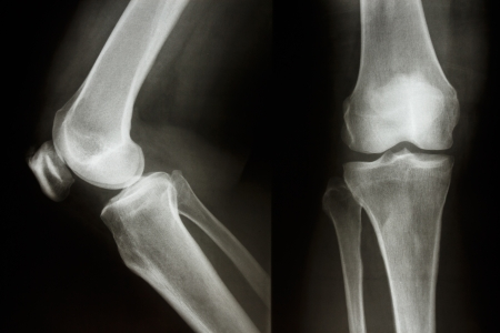 Film X-ray show normal knee joint AP Lateral Stock Photo - 25490300