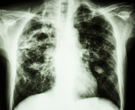 interstitial: film chest x-ray show cavity at right lung,fibrosis   interstitial   patchy infiltrate at both lung due to Mycobacterium tuberculosis infection  Pulmonary Tuberculosis  Stock Photo