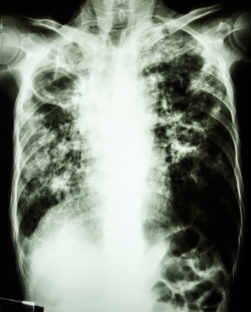film chest x-ray show cavity at right lung,fibrosis   interstitial   patchy infiltrate at both lung due to Mycobacterium tuberculosis infection  Pulmonary Tuberculosis Stock Photo - 25489751