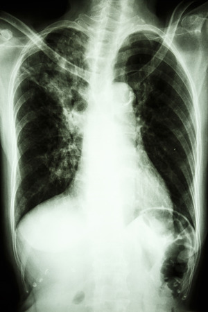 interstitial: film chest X-ray PA upright show interstitial infiltrate at right upper lung due to mycobacterium tuberculosis infection (Pulmonary tuberculosis) Stock Photo