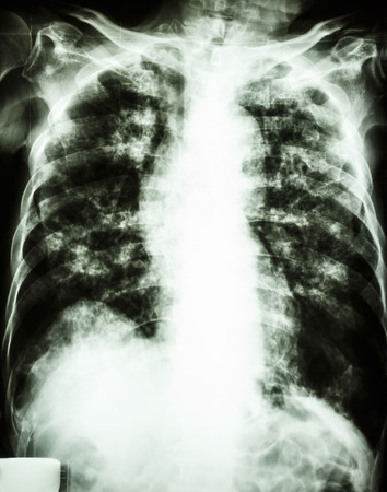 film chest x-ray show interstitial infiltrate and alveolar infiltrate both lung due to Mycobacterium tuberculosis infection  Pulmonary Tuberculosis  photo